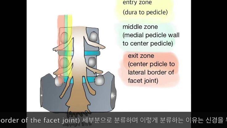 척추관 협착증의 단계 신경경로에 따른 구분 - YouTube