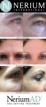 http://www.nerium.com/join/theresadevito Un-touched Before & After pics speak for themselves!  My family & friends say I look 10 yrs. YOUNGER (just from using NeriumAD) and now, they DO, too! You will see REAL RESULTS - no joke!  Your fine lines and wrinkles will disappear right before your eyes (I saw results in 3 days) You will be THRILLED at how lovely, smooth and RADIANT your skin will LOOK & FEEL within 30 days!  Blessings, xo T