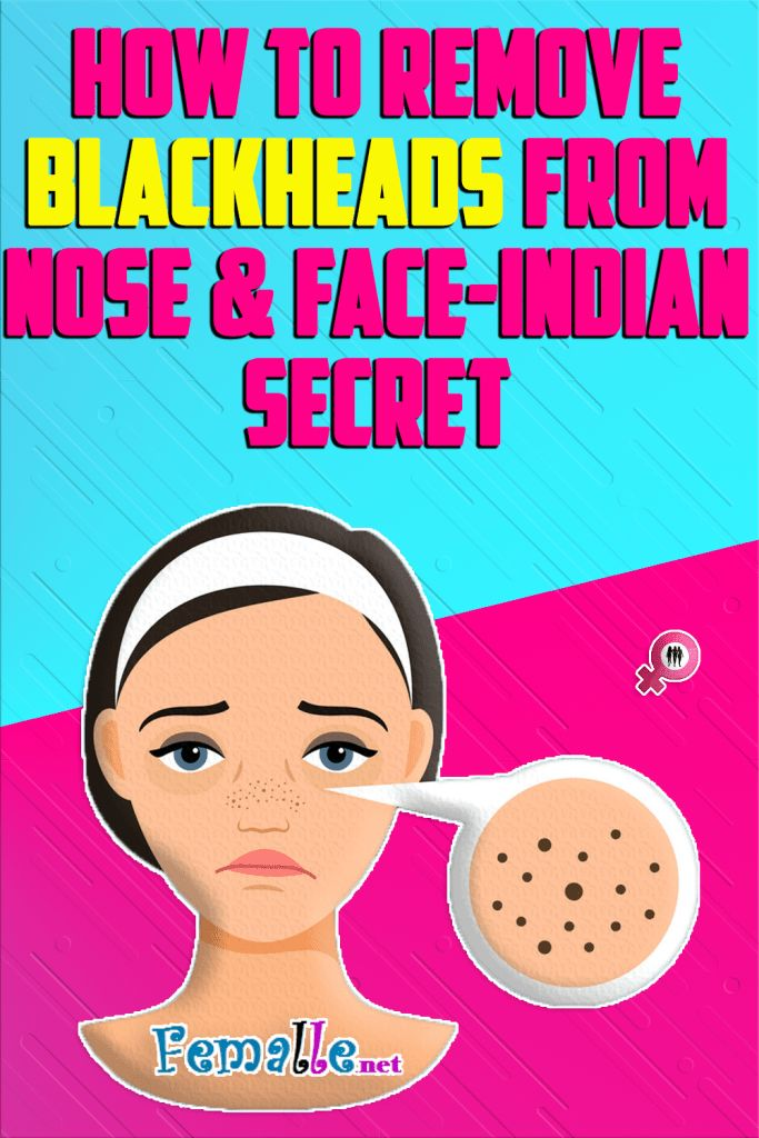 How to Remove Blackheads from Nose & Face-Indian Secret