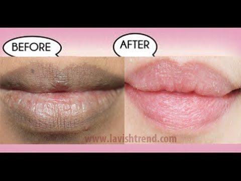 How to get pink lips/ Lighten dark lips naturally at home/ DIY miracle remedies - YouTube