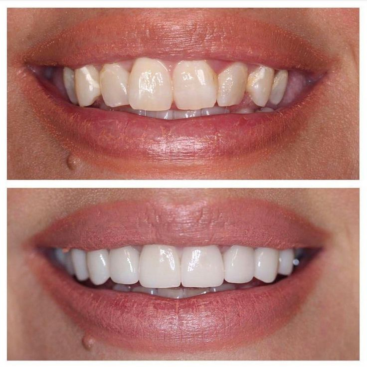 "207 Likes, 3 Comments - COSMETIC DENTISTRY™ (@cosmeticdentists) on Instagram: ""Happy Wednesday! Take a look at our satisfied patient! She is extremely happy that her smile is now…"""
