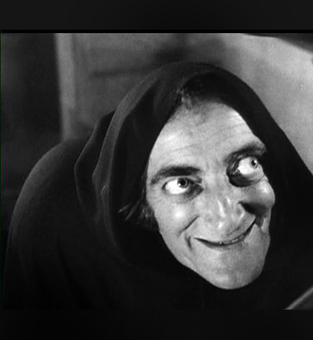 "Marty Feldman from ""Young Frankenstein"". 