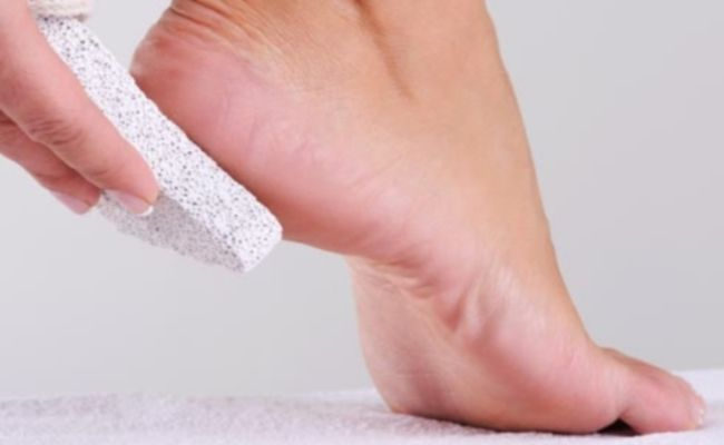 A callus, also known as callosity, is a toughened skin area that has become thick and hard due to repeated friction, pressure or other irritation. Usually, calluses develop on the feet, especially on the bottoms of the feet and the underside of the big toe. Calluses can also develop on the hands, fingers or anywhere on the body where there is repeated friction. Calluses on the feet are typically due to dry skin or too much friction on one area, such as the repeated rubbing caused by…