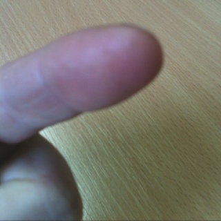 Today I have a thorn in the tip of my finger - ow!
