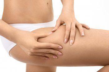 Hilfreich im Kampf gegen die Cellulite, bei Krampfadern, Besenreisern sowie Schmerzen in den Beinen ist eine Kombination aus Arnika und Rosskastanie.