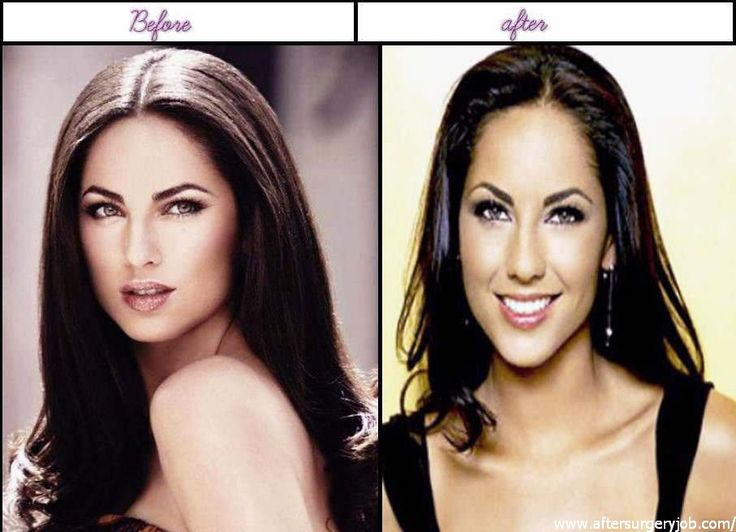 5 Photos Of Barbara Mori Right After In Advance Of Plastic Surgery 2014 - http://www.aftersurgeryjob.com/5-photos-barbara-right-advance-plastic-surgery-2014/