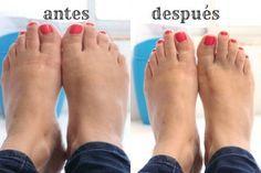 pies hinchados antes y después