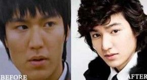 Visit our site http://superstarplasticsurgery.net/ for more information on Before And After Plastic Surgery. Lee Min-ho is a South Korean actor, singer and version. He has been open with revealing the reported Lee Min Ho plastic surgery though and has actually been sharing the operations he has actually been with. Among the said operations is rhinoplasty.