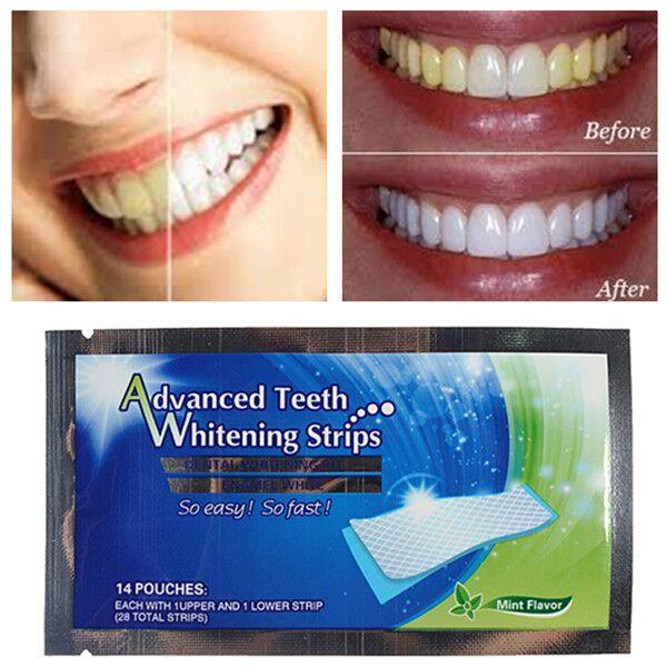 2 paquetes dientes tiras de blanqueamiento en casa blanqueamiento dental más blancos