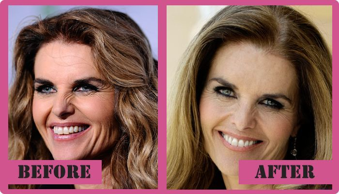 Maria Shriver Plastic Surgery Before And After Maria