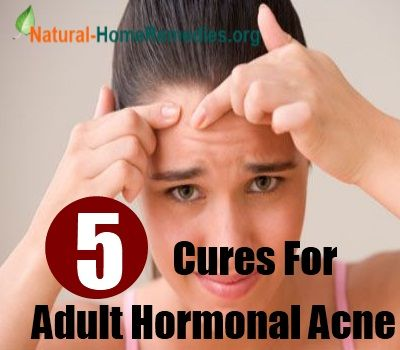 Are Cures for adult acne work