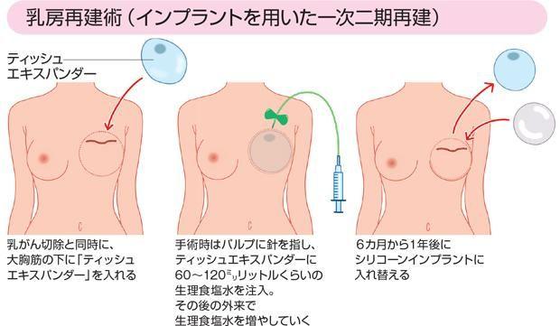 手術 乳がん