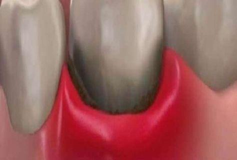 Περιοδοντίτιδα & ουλίτιδα: Αντιμετώπιση με φυσικές μεθόδους είναι οξεία, όταν εμφανίζεται απότομα και αφορά σε μια μικρή ομάδα δοντιών (εντοπισμένη) ή χρόνι