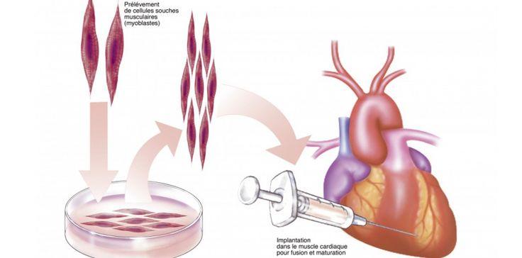 insufisance cardiaque - Recherche Google
