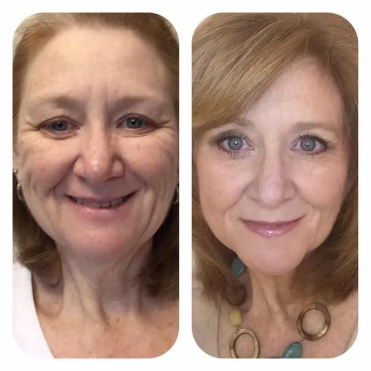 Absolutely AMAZING results!!! Order at lindagranstrom.nerium.com