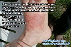 Le Remède Naturel Anti-Brûlure Utilisé dans les Hôpitaux. Source : Comment-Economiser.fr | http://www.comment-economiser.fr/miel-brulure.html