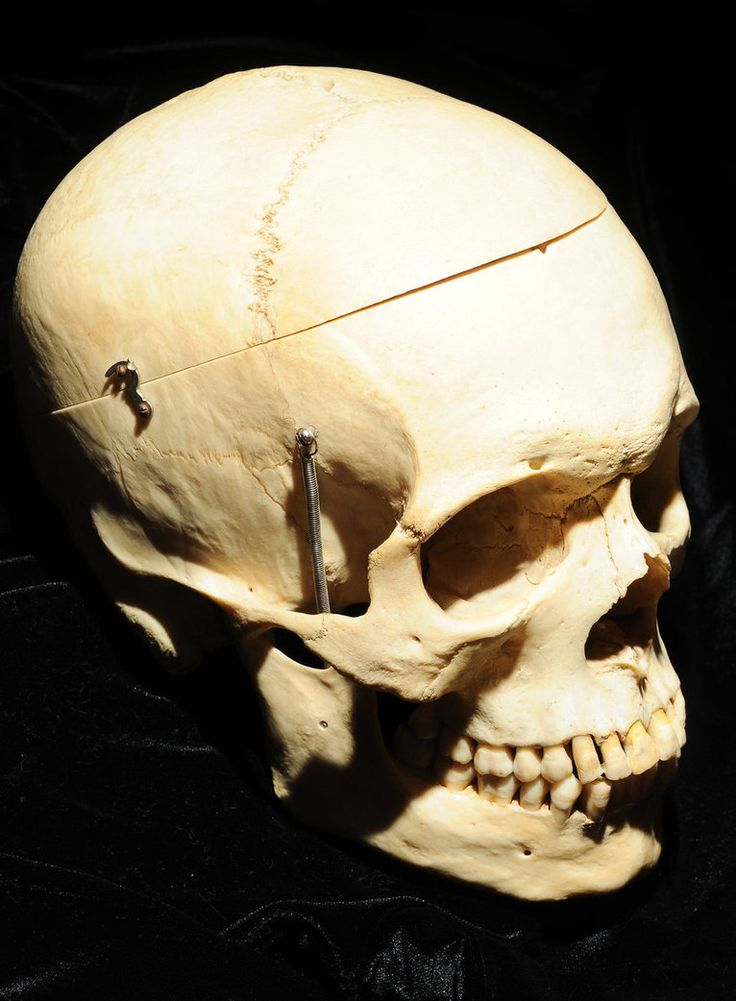 Human Skull side view by Meddling-With-Nature.  Great use of shadow, plus angle makes it more dynamic