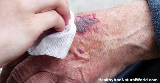 Effective Homemade Minor Burn Treatments