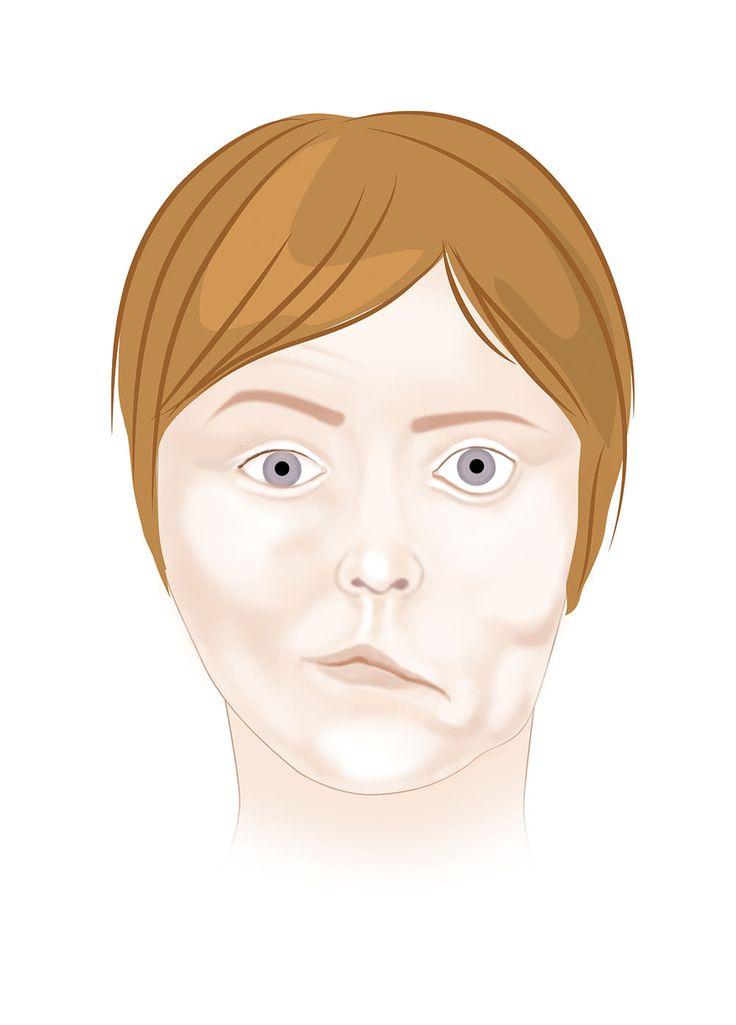 dermatologia estetyczna warszawa laryngolog warszawa prywatnie