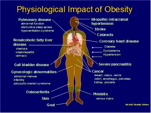 obesity should be seen as a problem not a disease Obesity & kidney disease by why is ckd awareness important for a person affected by obesity a person affected by obesity should consider the (see image right.