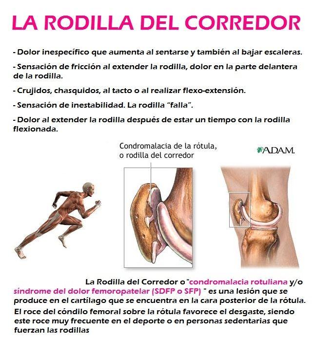 LA RODILLA DEL CORREDOR causas y tratamiento:   Comúnmente llamada así, en el ámbito deportivo, a al Condromalacia Rotuliana o Síndrome del dolor femoropatelar. Curiosamente es más frecuente en mujeres que en hombres por las características anatómicas de la mujer.  +info: http://www.logarsalud.com/2014/03/20/la-rodilla-del-corredor-causas-y-tratamiento/