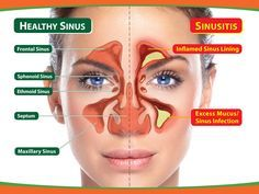 17 DIY Home Remedies for Sinus Infection - this is worth its weight in gold!