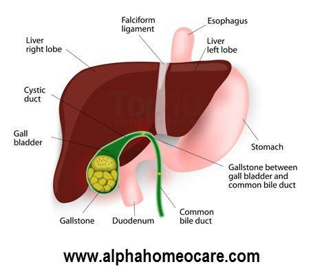 পিত্তথলির পাথর, কারণ, লক্ষণ, রোগ নির্ণয়, হোমিওপ্যাথি চিকিৎসা এবং ব্যবস্থাপনা ( Gallstones, Causes, Symptoms, Diagnosis, Homeopathy treatment and Management ) | আলফা হোমিও কেয়ার । Homeopathy