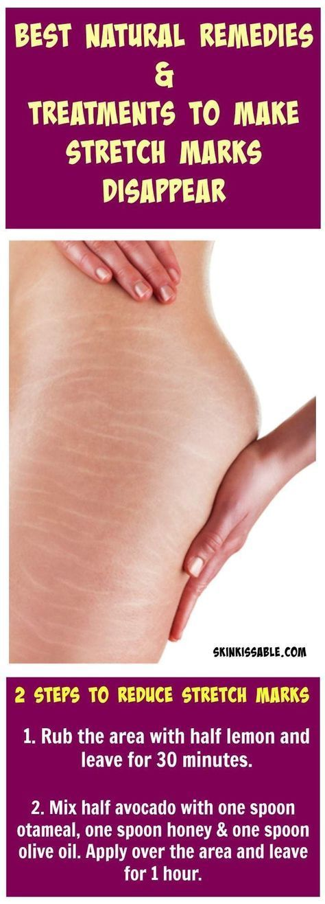 Best Natural Remedies to Make Stretch Marks Disappear!!!