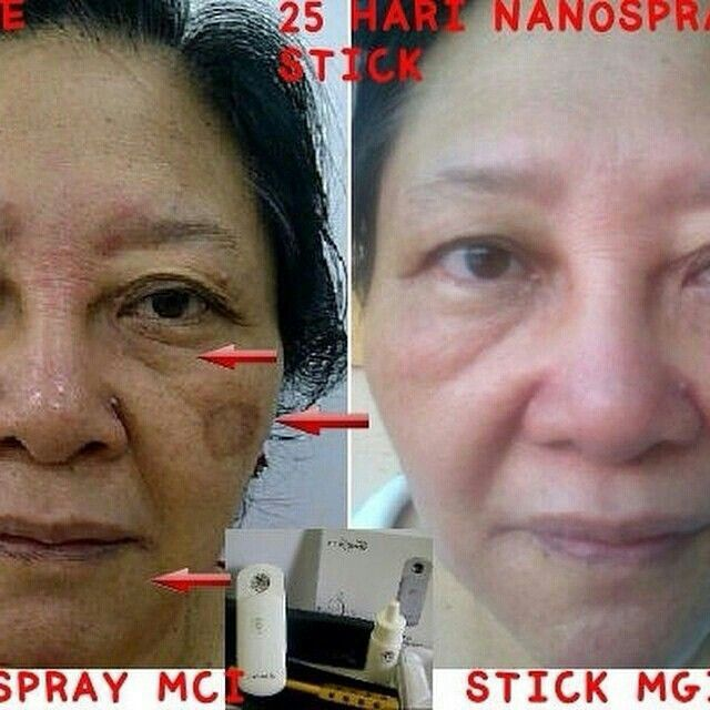 Testimonials for nanospray n magicstick MCI,for info n order please reach me at 2861EC9F or SMS 081216513787