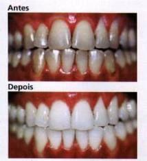O clareamento dos dentes tornou-se algo tão desejado pelas pessoas hoje, porém, o tratamento numa clínica é muito cara. Mas, para quê, né? Se há divers...
