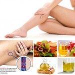 Tratamientos naturales para las várices
