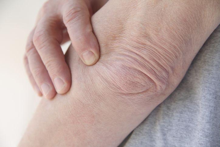 5 remèdes naturels pour soulager la bursite noté 3.63 - 8 votes La bursite est un mal qu'on appelle parfois aussi hygroma. Cela touche les toutes petites poches qui se trouvent autour des articulations (entre les os et les tendons). Cette inflammation gagne donc les articulations du coude, des épaules, du genou, de la hanche...