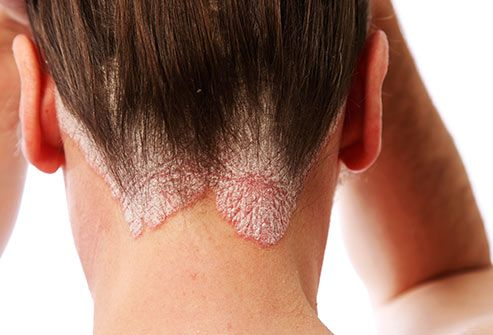 Scalp Psoriasis Slideshow: What You Need to Know – Symptoms, Home Remedies, and Medications to Stop Itch, Scaling, and Pain