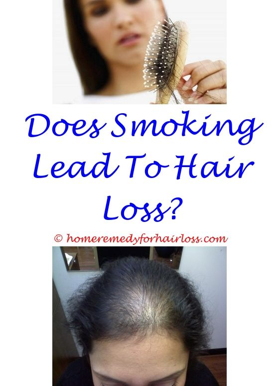 latisse for hair loss reviews - emu oil hair loss.hair loss causes in young females glucosamine and hair loss cat hair loss on haunches 1974394818