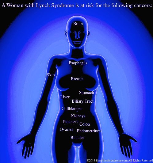 how to know if u have colon cancer