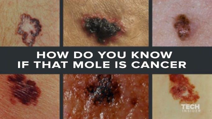 Best 25+ Cancerous moles ideas on Pinterest