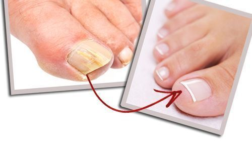 Get rid of the fungal infection of nails using baking soda and vinegar - Magical Mind #ToenailFungusArticles #ToenailFungusLavender