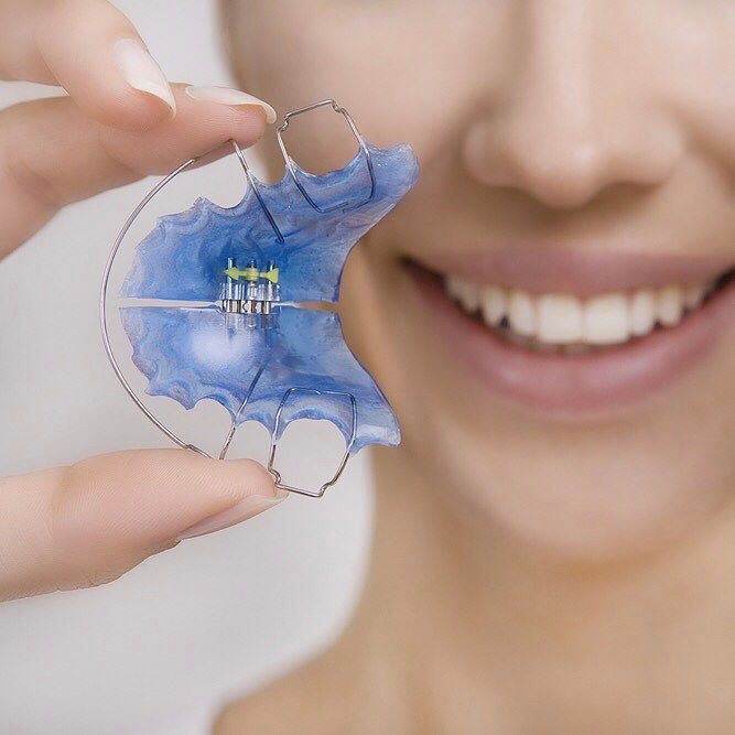 #OrthodonticFact: Did you know nearly 25% of orthodontic patients have to get braces again because they didnt wear their retainers? Dont be one of them. Wear your retainer and maintain your healthy smile.  #smile #braces #retainer