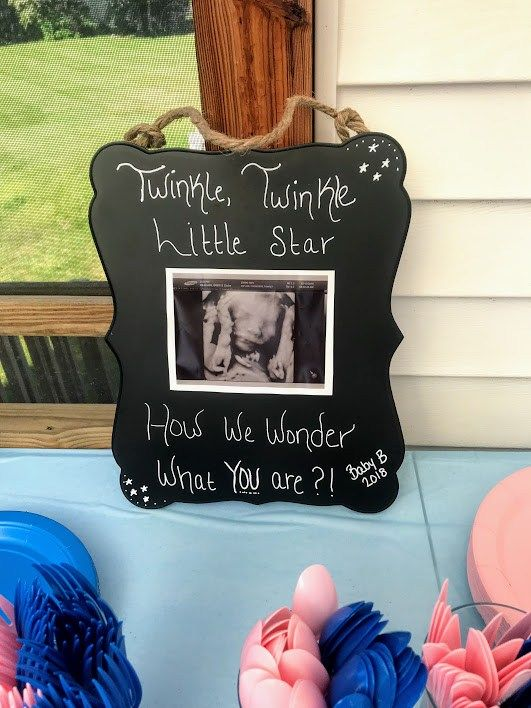Gender Reveal Party Ideas – The Mommy Way