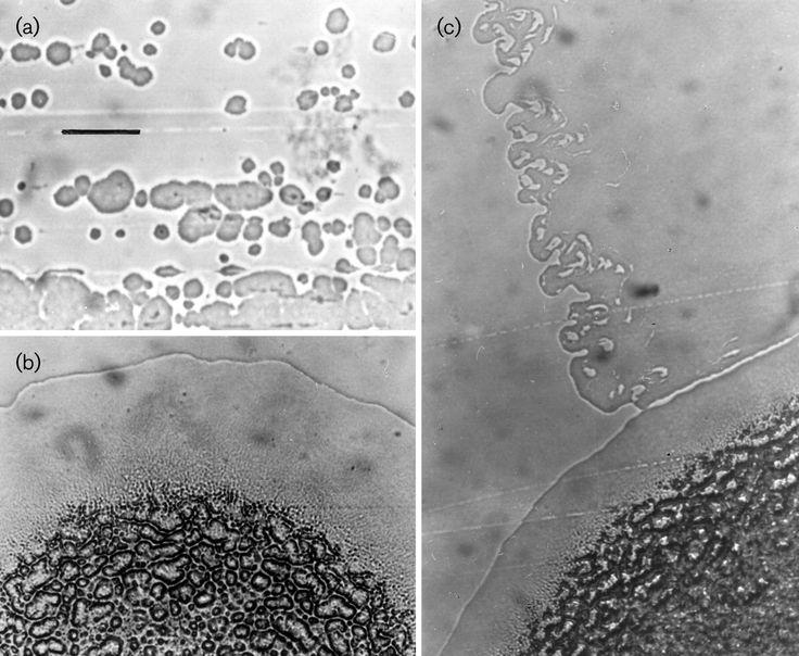 Hydrocarboniphaga effusa  [000.004.061]