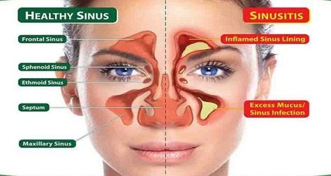 Sinus infections can be truly miserable, but there are many safe and effective natural remedies that can provide relief from typical sinus symptoms such as sinus pain, sinus pressure, and headaches. Sinusitis is the medical term for most sinus infections, describing inflammation of the naval cavities and sinuses. This inflammation can make it difficult …