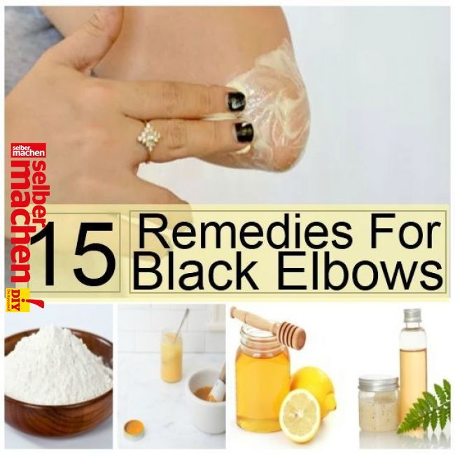 The Buildup Of Thick And Dead Skin Formed By The Friction Or Pressure In Elbows Or Knees Or In Ankles Causes The Skin To Turn Black Lea Beauty Tip Dark