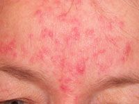 Intense Pulsed Light Rosacea treatment (IPL) may well be one of your best options – for certain types of rosacea. While being a form…
