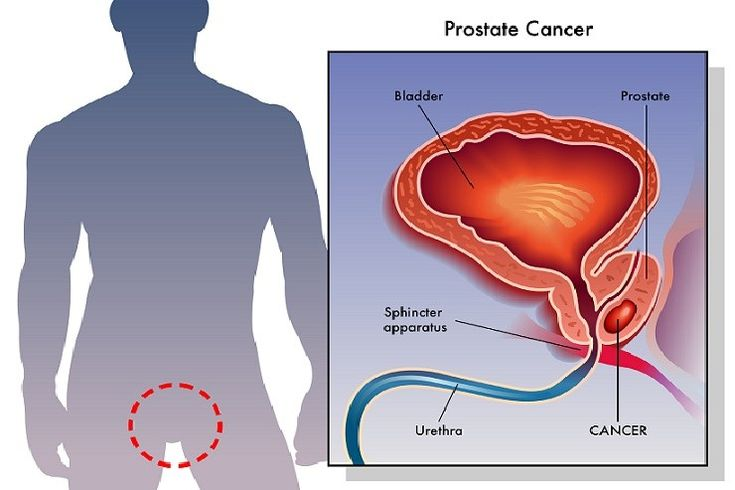 7 Best Prostate Images On Pinterest Healthy Living