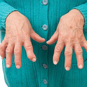 Phantom Menace: Does Seronegative Rheumatoid Arthritis Exist? The quick answer is that, no, seronegative rheumatoid arthritis does not exist. However, this answer requires some explanation and a little background. Rheumatoid arthritis (RA) is a condition characterized by swollen, painful joints.