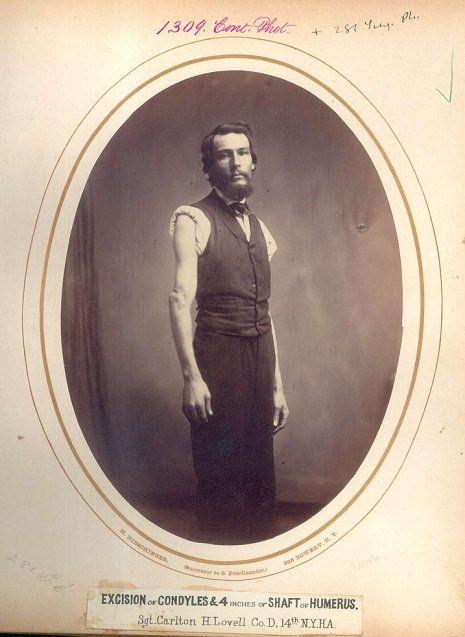 Portraits de vétérans blessés durant la guerre de Sécession   portraits de veterans blesses amputes durant la guerre de secession 6