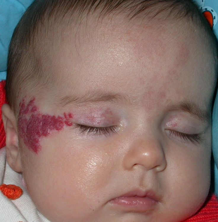 Strawberry Birthmark Near The Eye