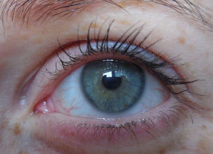 Viki - left eye