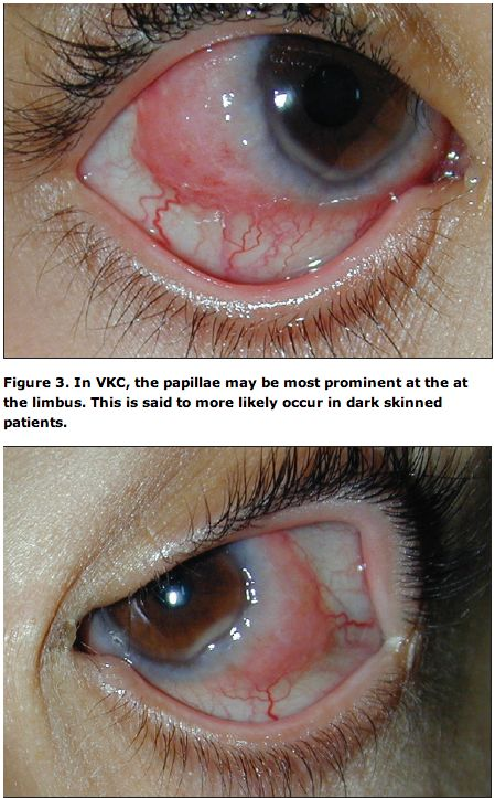 VKC:  Look for a papillary conjunctival response, mostly at the limbus and upper tarsus. Thick and ropy mucus often accompanies the tarsal papillae. The corneal changes may be sight-threatening. If a punctate epithelial keratitis goes untreated, a shield ulcer may develop on the upper half of the visual axis, leaving a scar when it heals.