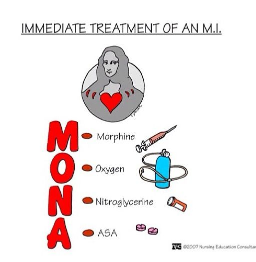 Myocardial Infarction Treatment  Morphine, oxegen, N-glycerine and Asprin